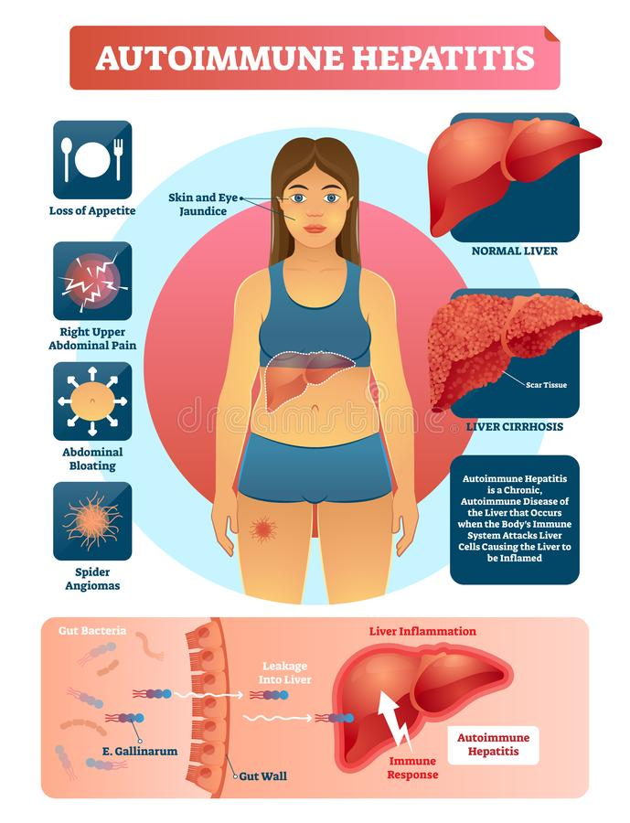 Autoimmune hepatitis vector illustration. Labeled diagram with disease stock illustration