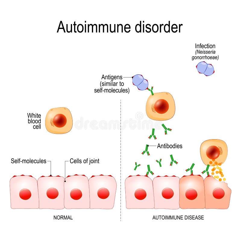 Autoimmune oordningar Antigen av bakterieNeisseriagonorrhoeae är liknande till själv-molekylar av sunda gemensamma celler stock illustrationer