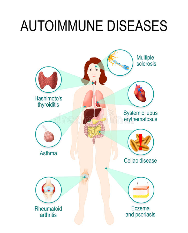 Autoimmune sjukdomar vektor illustrationer