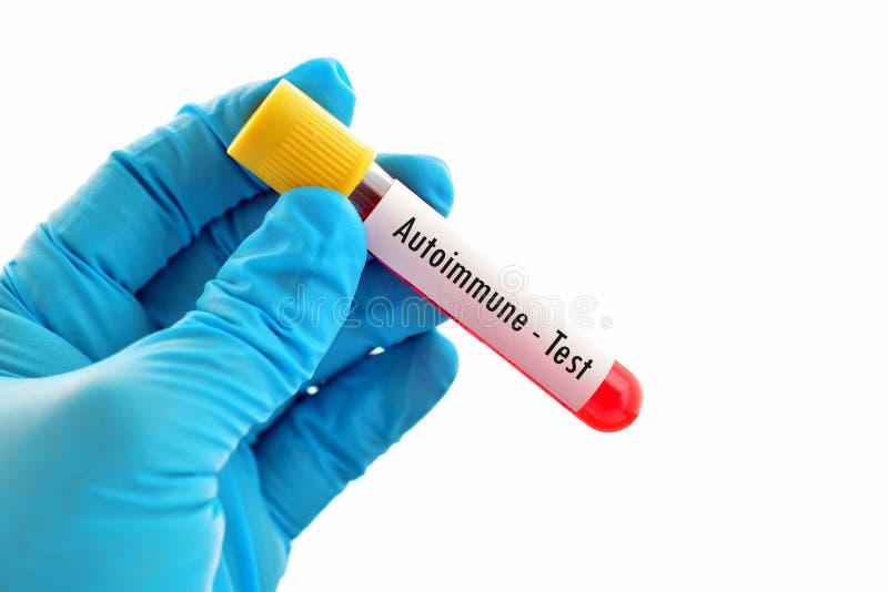 Autoimmune test zdjęcie stock
