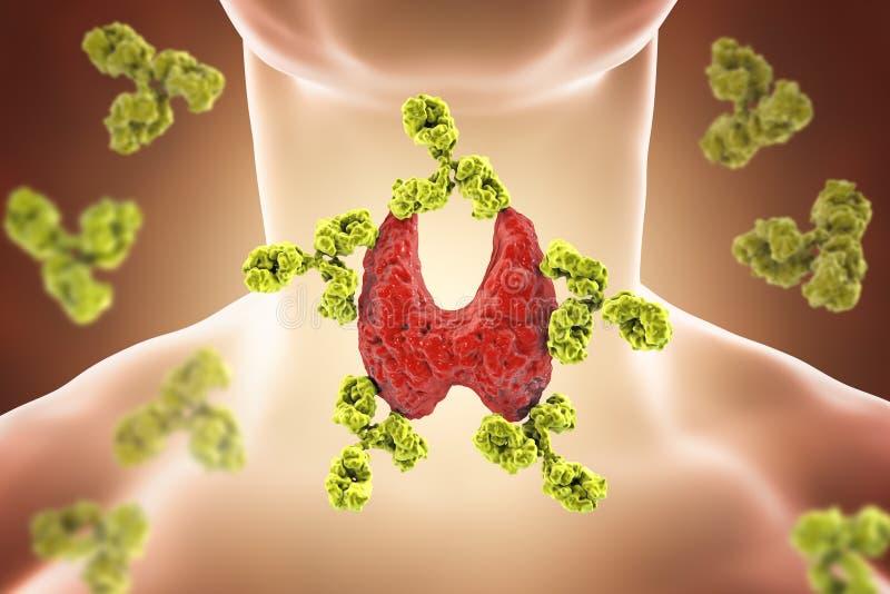 Autoimmune thyroiditis, sjukdom för Hashimoto ` s vektor illustrationer