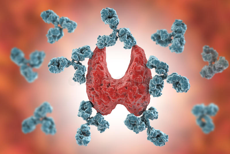 Autoimmune thyroiditis, sjukdom för Hashimoto ` s stock illustrationer