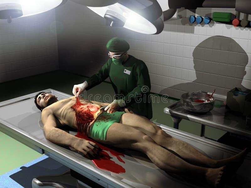 Autopsie lizenzfreie abbildung