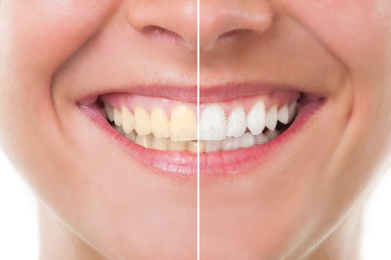 Avant et après le blanchiment photographie stock libre de droits