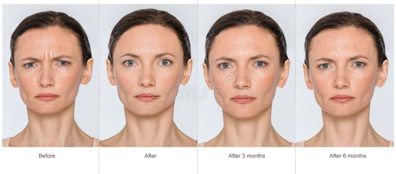 Avant et après le concept d'anti-âge photo stock