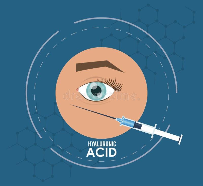 Aviador infographic de la inyección del llenador del ácido hialurónico stock de ilustración