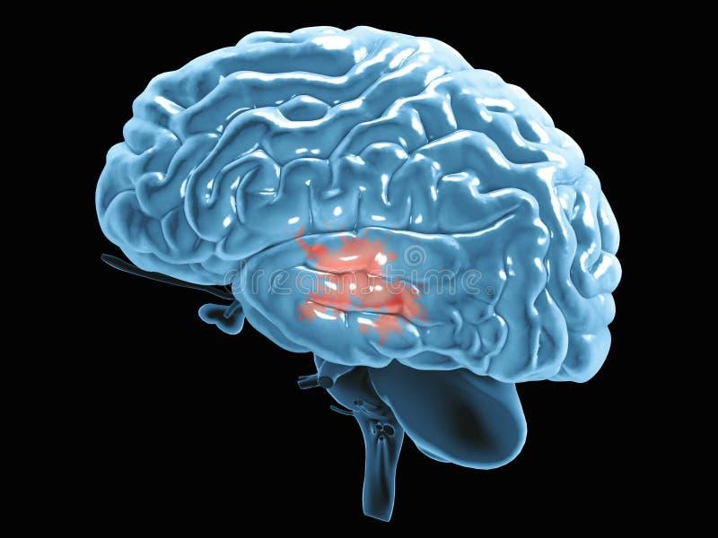 Avsnitt av en hjärna som ses i profil Degenerative sjukdomar, Parkinson, synapses, neurons, Alzheimers royaltyfri illustrationer