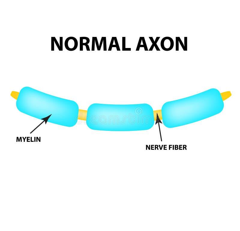 Axón normal Myelin sano Día de la esclerosis múltiple del mundo Infografía Ejemplo del vector en fondo aislado stock de ilustración