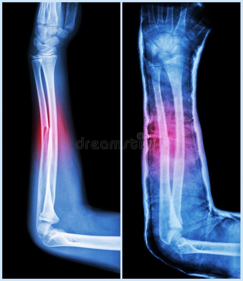 Axe de fracture d'os ulnaire (os d'avant-bras) : (Parti : traitement préparatoire, droite : Psot-traitement (attelle avec la font image stock