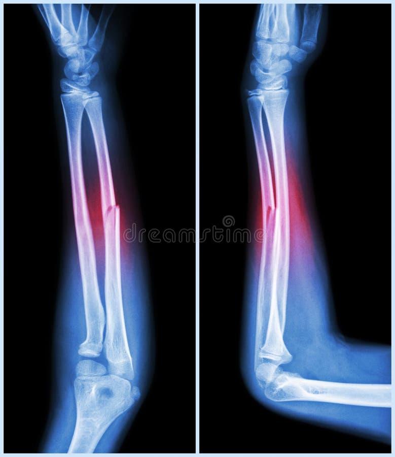 Axe de fracture d'os ulnaire (os d'avant-bras) : (vue de côté avant et) photo stock