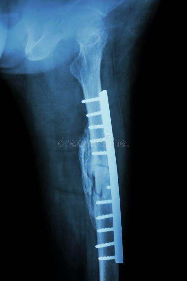 Axe de fracture de fémur Il a été actionné et fixation interne photos stock