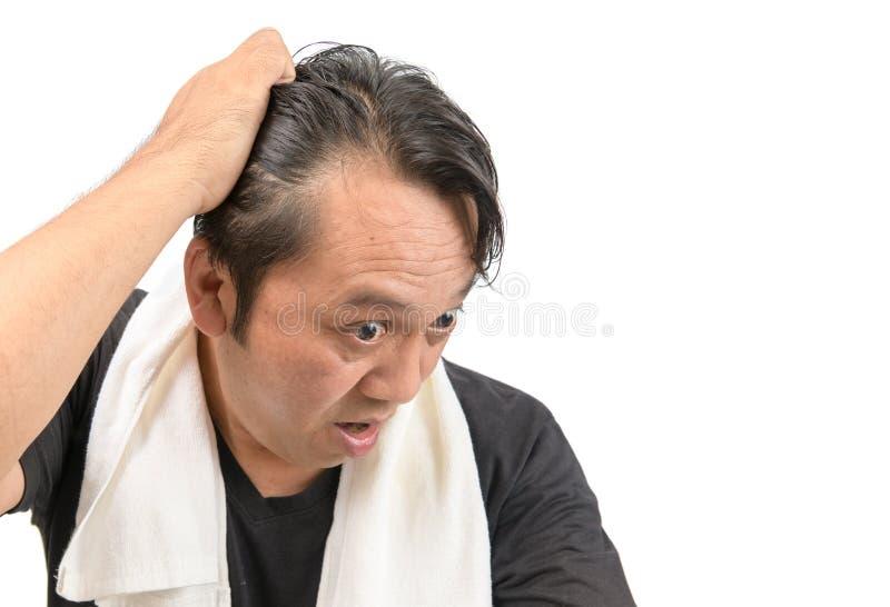 Aziatische mensenzorg op middelbare leeftijd over zijn haarverlies royalty-vrije stock foto