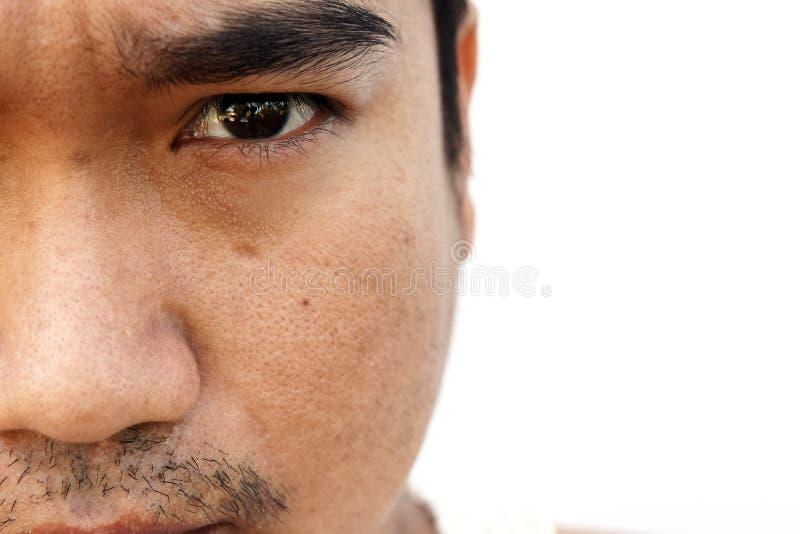 Azjatycka mężczyzna twarzy skóra po tym jak no dostawać mrugnięcia sen i no bierze opieki przez długi czas zdjęcie stock