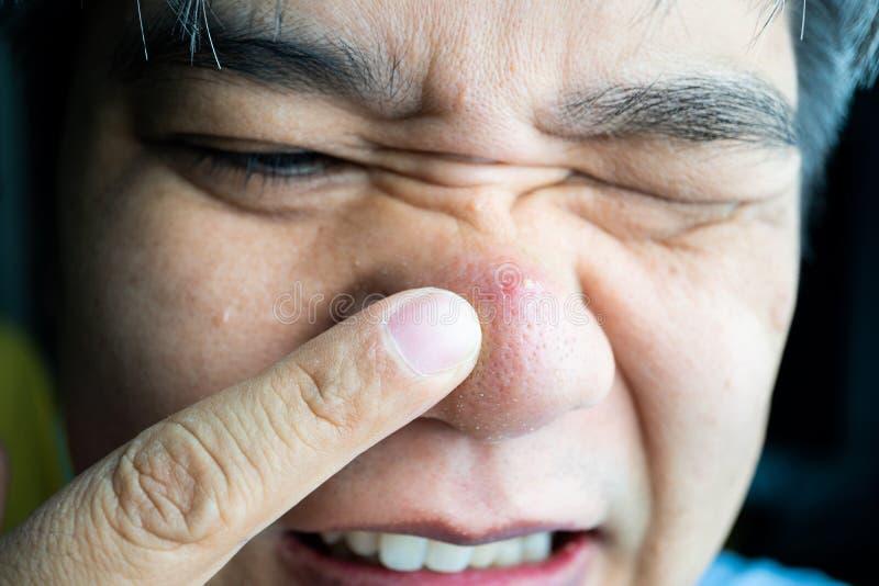Azjatycki facet bierze palec wskazującego wielkie krosty i trądzik blizny na on krosty i zaskórnika nos obrazy stock
