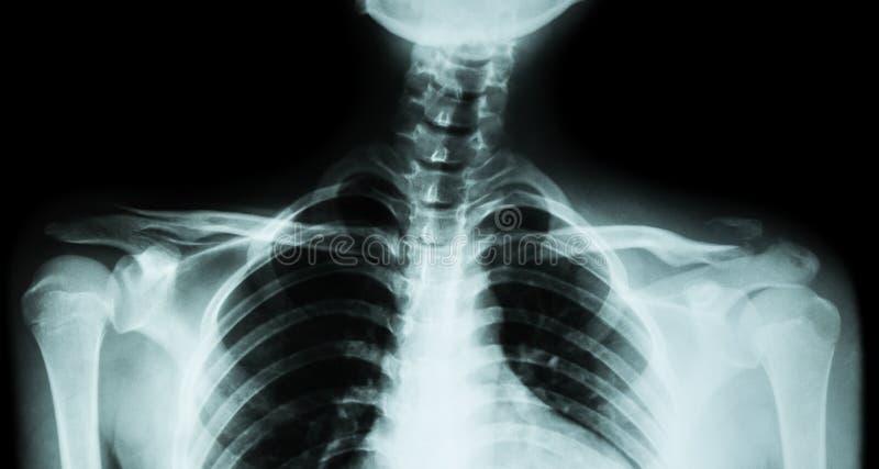 Båda filmröntgenstråle nyckelben AP (främre sikt): visa brottet det distala vänstra nyckelbenet arkivfoto