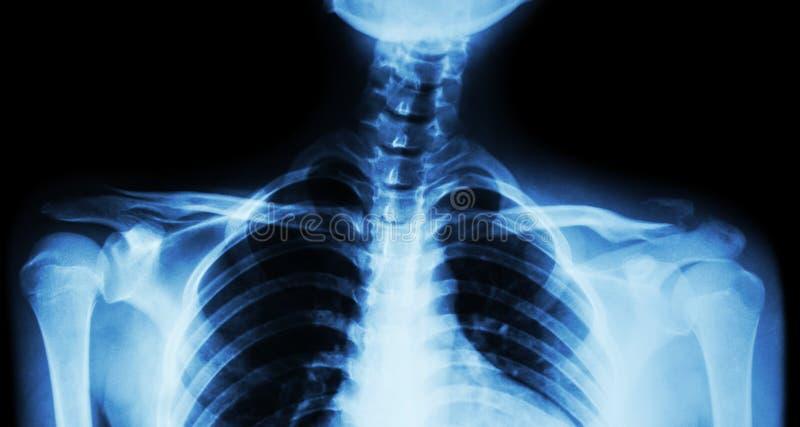 Båda filmröntgenstråle nyckelben AP (främre sikt): visa brottet det distala vänstra nyckelbenet arkivbild