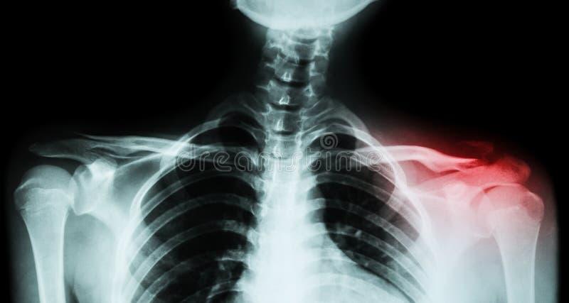 Båda filmröntgenstråle nyckelben AP (främre sikt): visa brottet det distala vänstra nyckelbenet royaltyfri fotografi