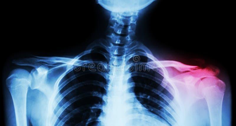 Båda filmröntgenstråle nyckelben AP (främre sikt): visa brottet det distala vänstra nyckelbenet arkivfoton