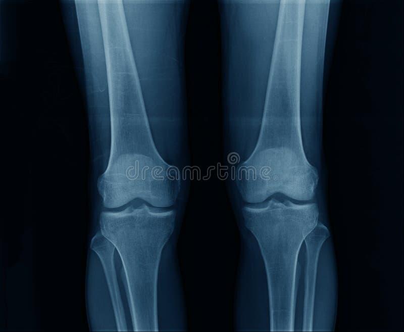 Båda röntgenstråleknä sida royaltyfria foton