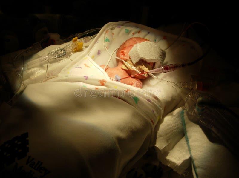 Bébé prématuré sur le ventilateur images stock