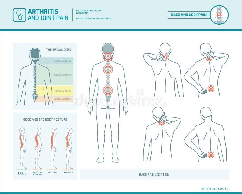 Ból pleców infographic ilustracja wektor