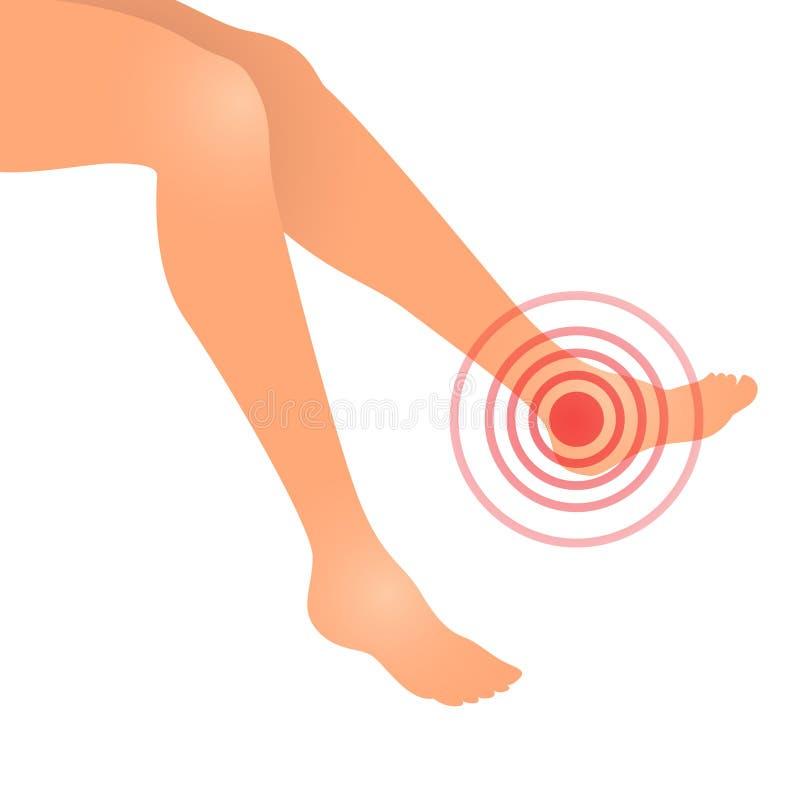 bólowa stopy kobieta ilustracji