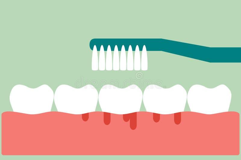 Bürstende Zähne mit Bluten auf Gummi- und Zahnkonzeptzahnfleischentzündung oder -skorbut vektor abbildung