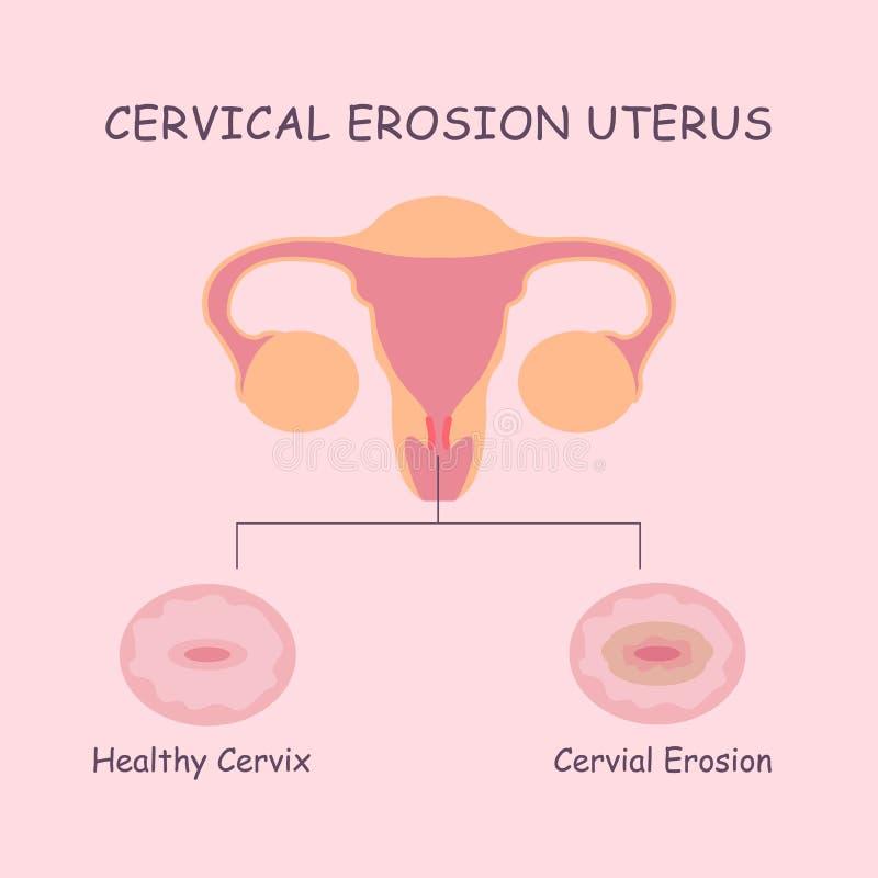 Baarmoeder en cervicale erosie vector illustratie
