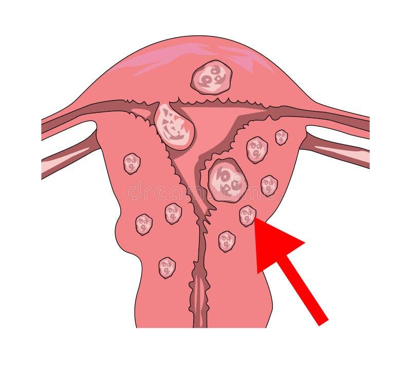 Baarmoeder fibroids met een wijzer aan myoma en pijnpunten royalty-vrije illustratie