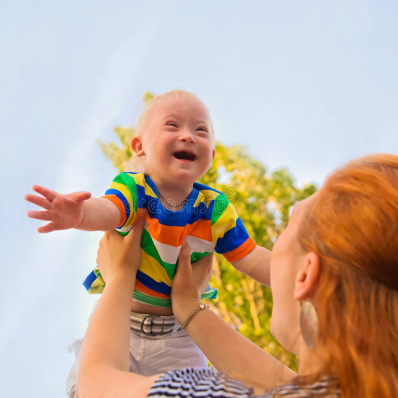 Baby with Down syndrome is happy stock image