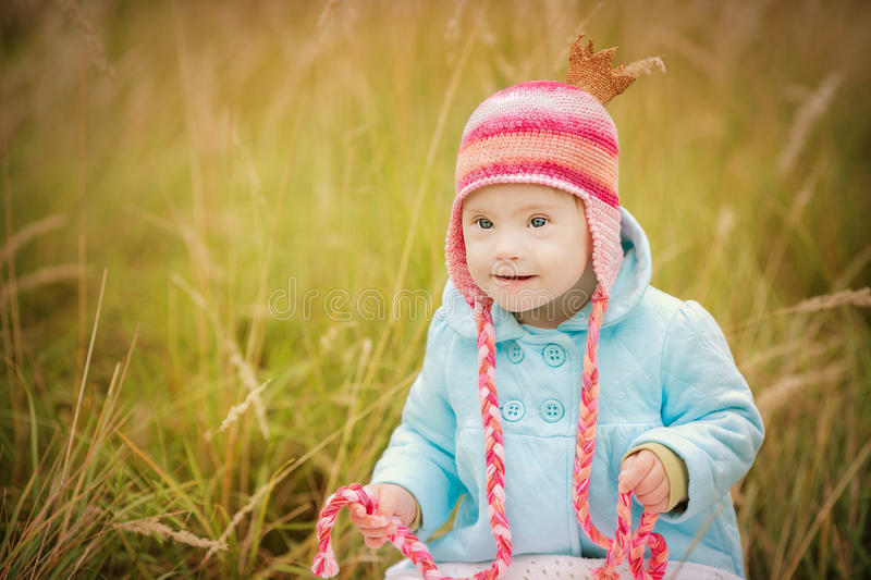 Baby girl with Down syndrome looks surprised stock photos