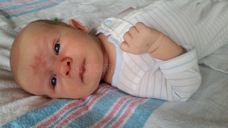 Baby met Angel Kiss Birthmarks op Gezicht stock afbeelding