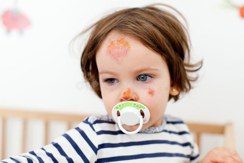 Baby met gezichtsverwondingen royalty-vrije stock afbeeldingen