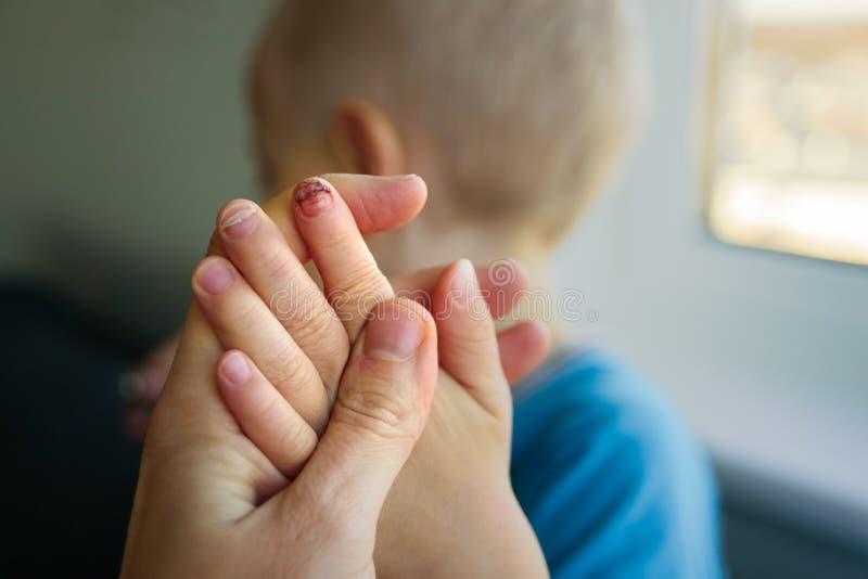 Baby mit defektem Nagel lizenzfreies stockbild
