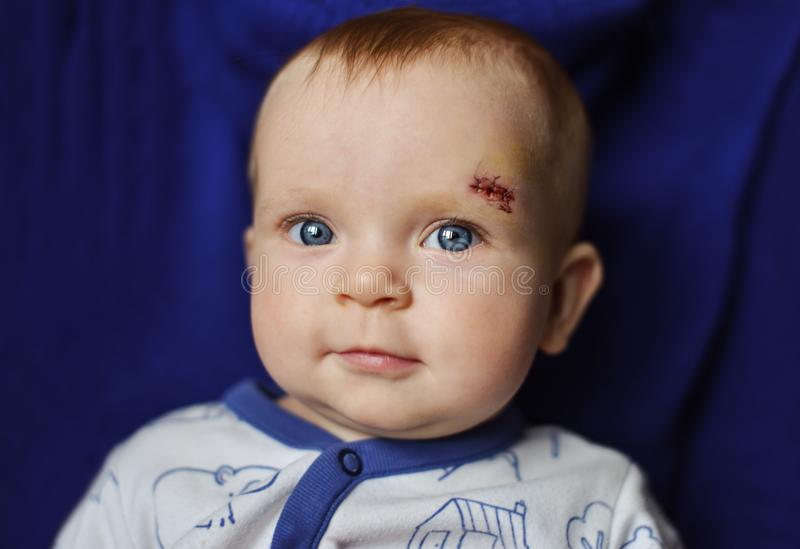Baby with scar on the face. Blue-eyed baby with scar on the face royalty free stock image