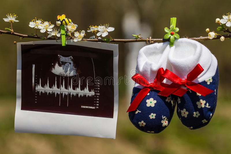 Baby slippers and ultrasound image royalty free stock photos