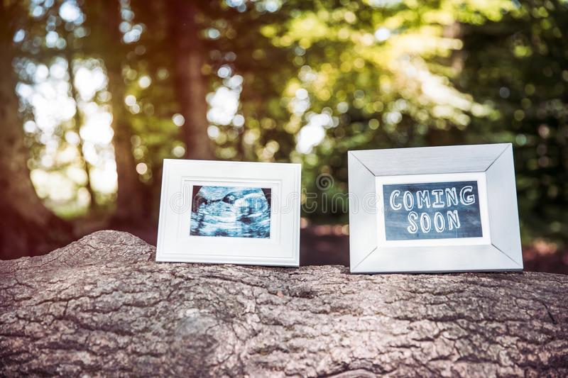 Baby Ultrasound and Coming Soon Photo Frames on Tree Trunk in Forest. Baby Ultrasound and Coming Soon Photo Frames on Tree Trunk in Forest stock images