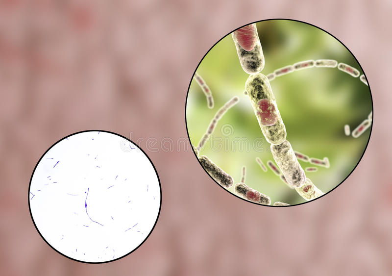 Bacil anthracis, lichte micrograaf en illustratie stock illustratie