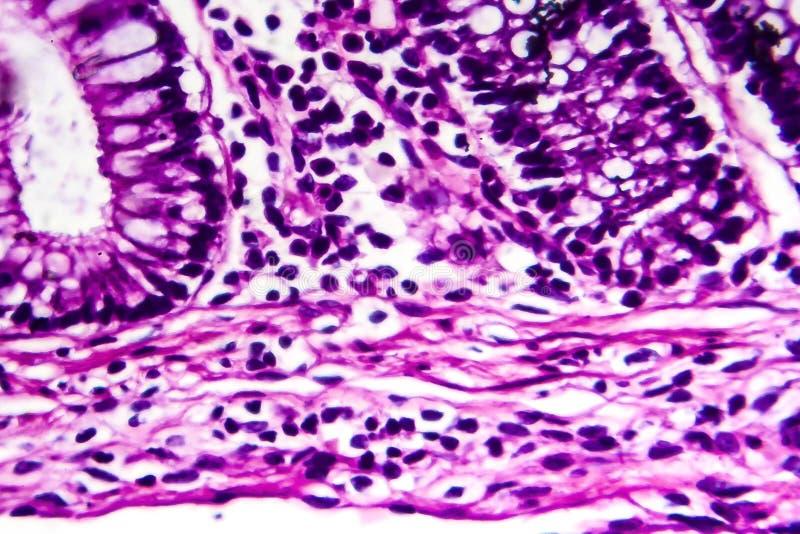 Bacillary dysenteri, ljus micrograph royaltyfria bilder