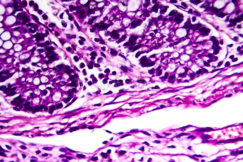 Bacillary dysenteri, ljus micrograph arkivfoton