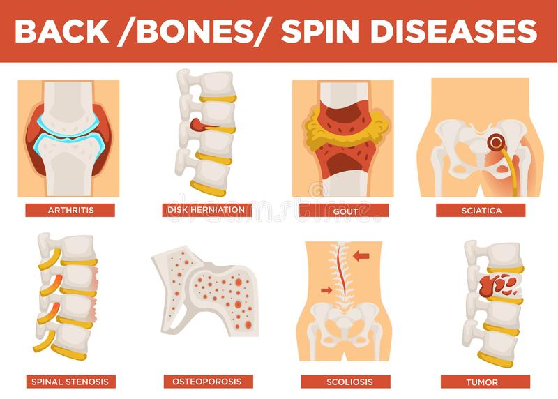 Back, bones and human spin diseases explanation vector. Disk herniation and gout, sciatica and spinal stenosis, osteoporosis illness set. Scoliosis crooked royalty free illustration