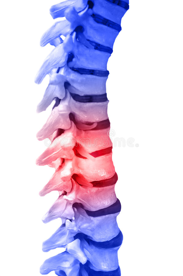 Free Back Pain Stock Images - 7468854