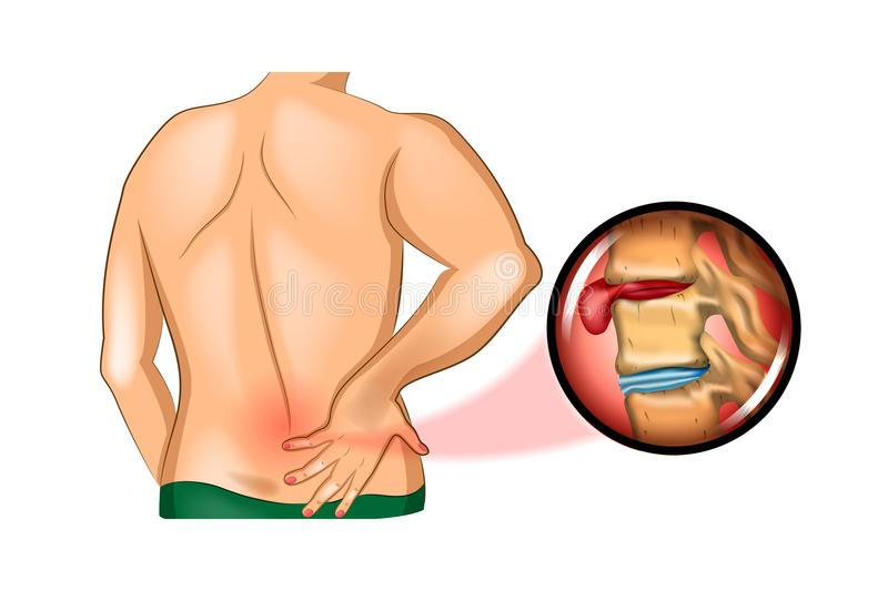 Back pain. damage to the spine royalty free illustration