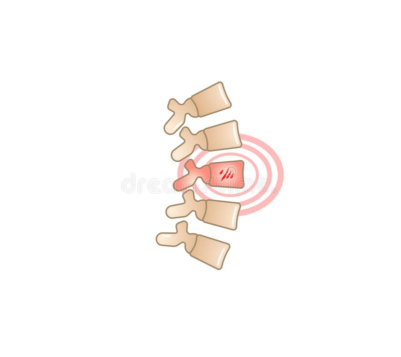 Back pain vector illustration icon royalty free illustration