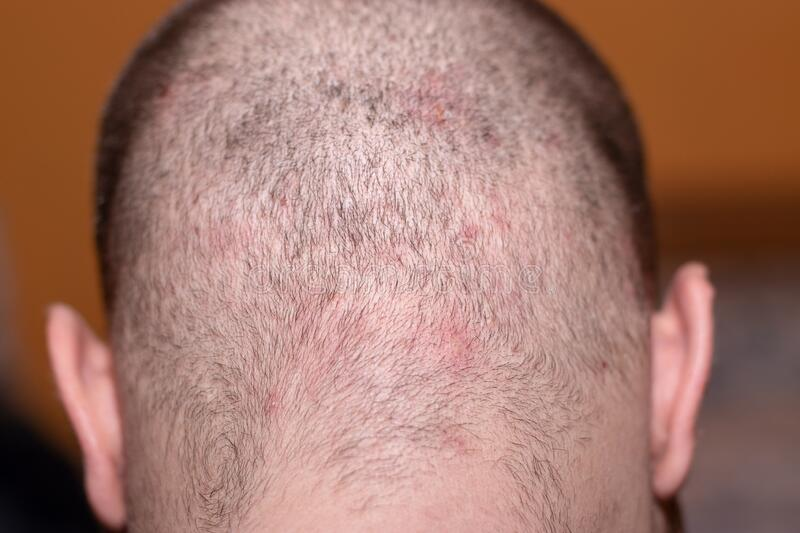 Head small bald Sores and