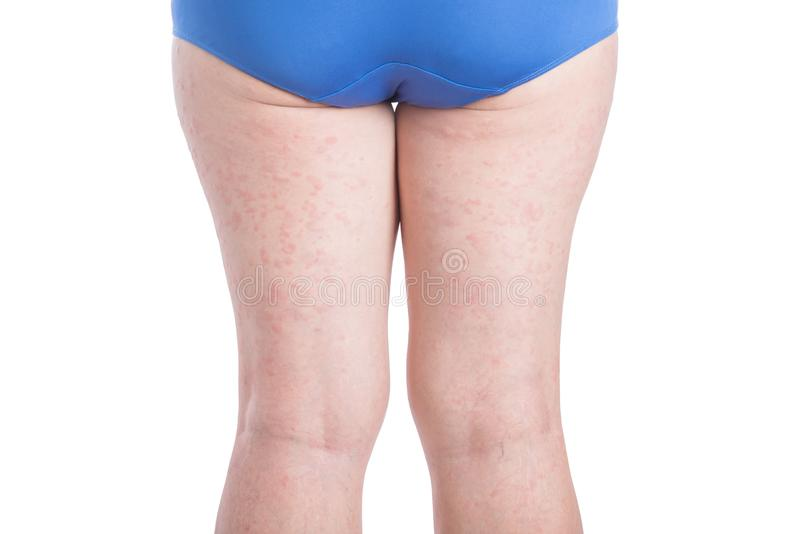 Back side of woman leg with allergy rash over white stock images