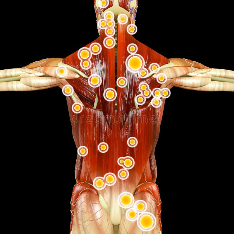 Back View Of A Man And His Trigger Points. Anatomy Muscles ...