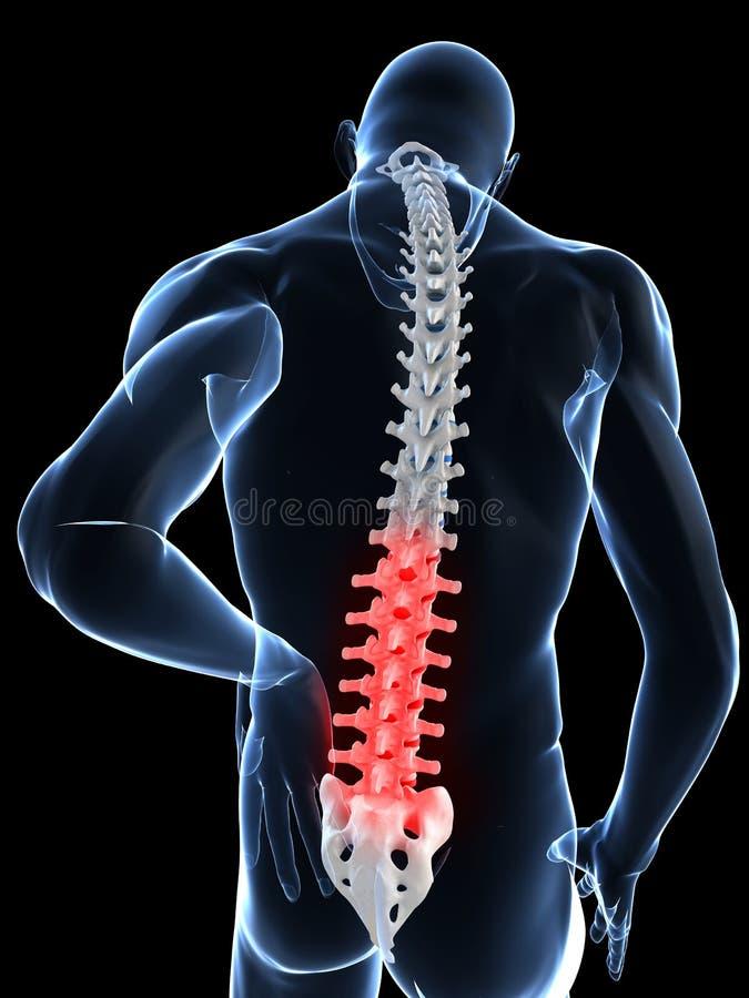 Download Backache stock illustration. Image of rheumatism, biological - 14137996