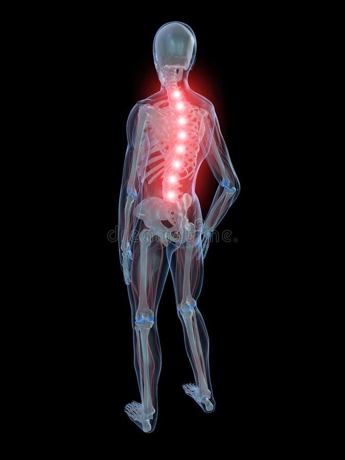 Download Backache illustration stock illustration. Image of arthritis - 7750478