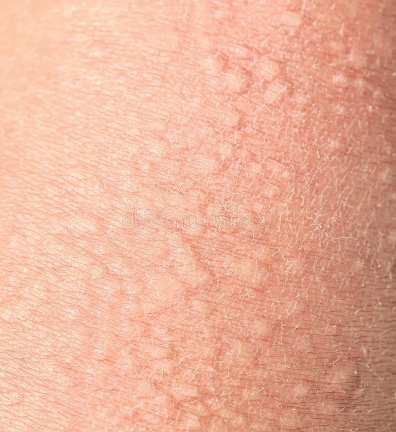Background of the texture unhealthy irritated human skin covered with small wrinkles ,cracks and blistering. Background of the texture unhealthy human skin stock image